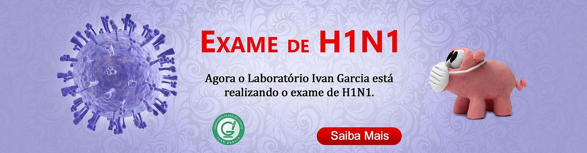 Agora o Laboratório Ivan Garcia está realizando o exame de H1N1